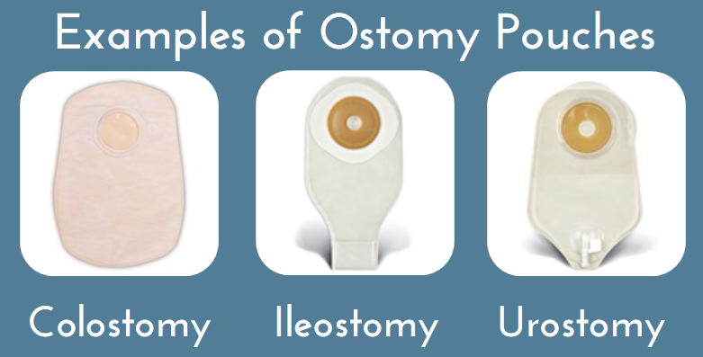 examples_of_ostomy_pouches